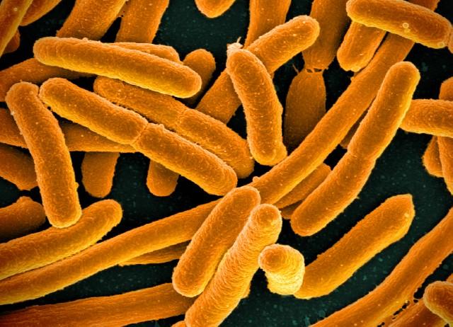 ¿Por qué hay un montón de voluntarios comiendo 'E. coli' modificada genéticamente?