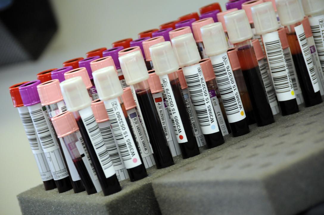 Este análisis de sangre podría revelar los casos exactos de coronavirus